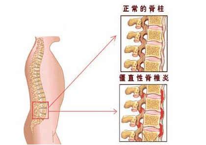 针灸治疗强直性脊柱炎