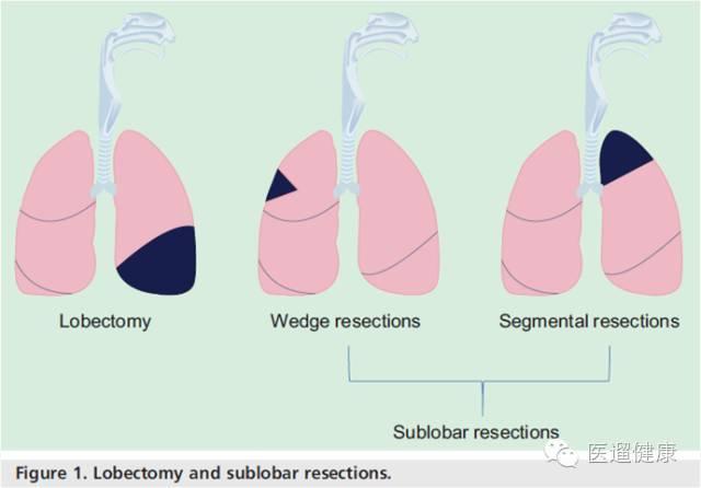 局部切除和肺段切除都称为亚肺叶切除,切除局域较小.图片