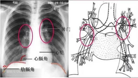 E(Effusions)双侧肺野 青少年肺周围肺纹理不易看到,老年人可以看得到,但不宜渗透到肺的边缘。肺纹理主要由肺血管组成,在肺门附近,或内带见到细小密度较高的结节阴影可能是肺血管的横断面。任何原因引起支气管壁增粗,均可使肺纹理增强。肺纹理的走行代表代表肺叶及肺段的解剖学结构。肺纹理纤细是由肺泡增大或肺气肿引起。 我们知道一侧肺野从肺门到肺的外周分为三等份分别称为肺的内、中、外带,正常情况下肺内中带有肺纹理,外带无,如果外带出现了肺纹理则有肺纹理的增多,反之内中带透亮度增加则肺纹理减少。对肺内中外带的