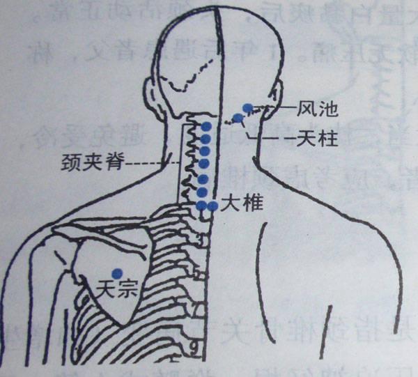 大椎血是人体哪个位置_天柱,大椎,阿是穴,合谷,外关,后溪.