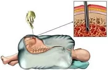 骨髓穿刺痛吗?有什么危险吗?会对人体造成伤害吗?