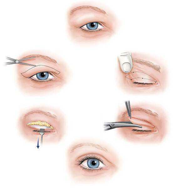 双眼皮能割步骤