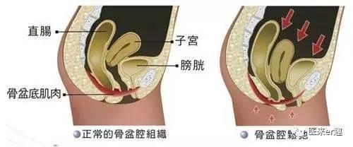 产后下腹站起来坠痛_产后12天下面还是坠痛_产后下腹坠痛