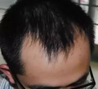 头皮出油严重脱发,头发细软又稀少,发际线高前额
