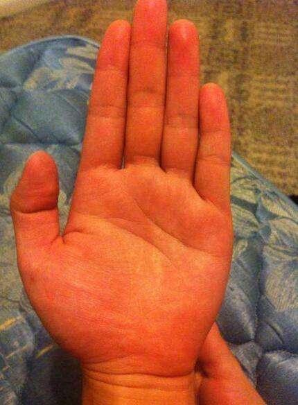 手掌出现红斑点,请问是肝掌吗 该怎么办图片