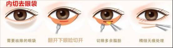谁在天津欧菲做过祛眼袋手术