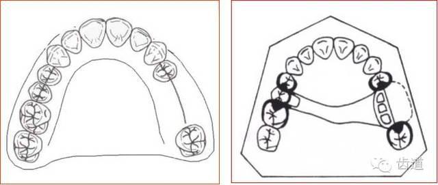 可摘局部义齿的肯氏(kennedy)分类及设计图片