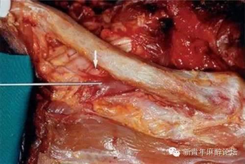史上最详细的锁骨下静脉穿刺技巧总结,赶紧收藏了!