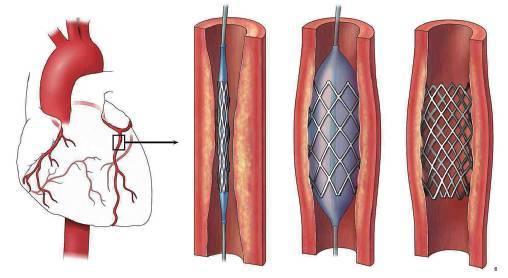 心脏的内部结构模式图