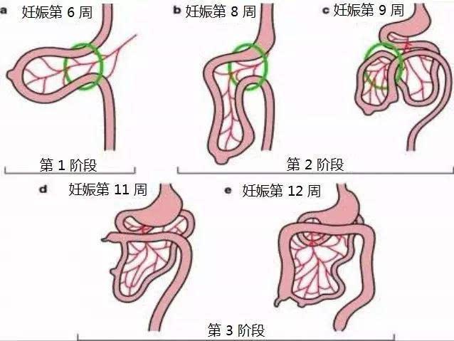 肠旋转不良时,由于肠管位置变异和肠系膜附着不全,易导致肠梗阻及肠