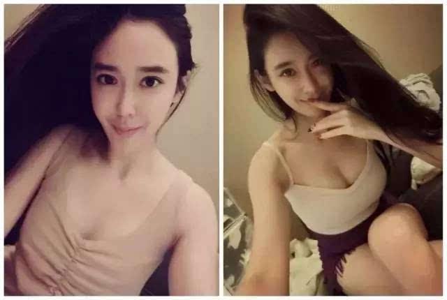 媛媛,节食过度不止乳房皮下组织减少,3个月明显大了导致2个罩杯怪物被美女v乳房图片