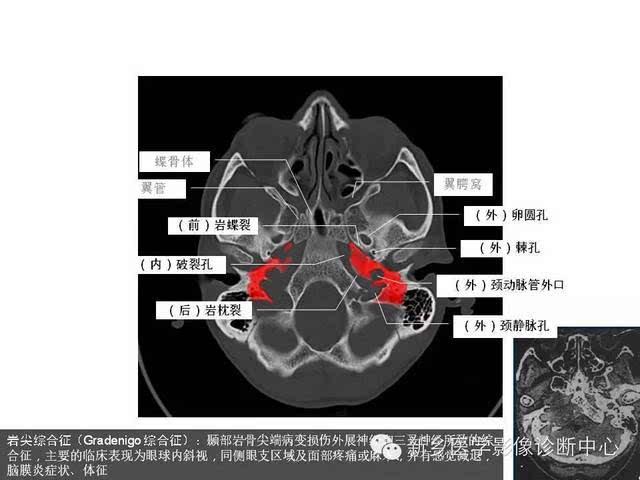 鼻咽部的详细解剖(含各个孔道)-健康频道-手机搜狐