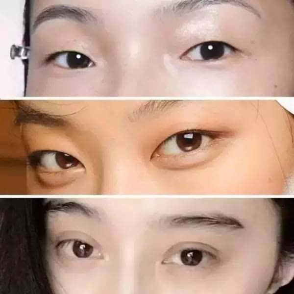 很多人看上去是单眼皮,实际上是内双.图片