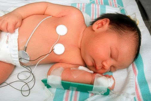 6个月宝宝双下肺感染