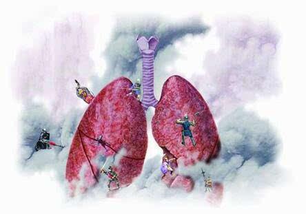 肺癌晚期有什么症状_肺癌晚期症状有哪些?如反复出现8大症状,需警惕