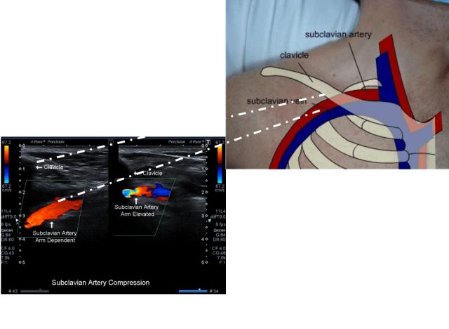 当低位颈内静脉穿刺时,有可能会撕裂锁骨下动脉的近心端,而远心端的