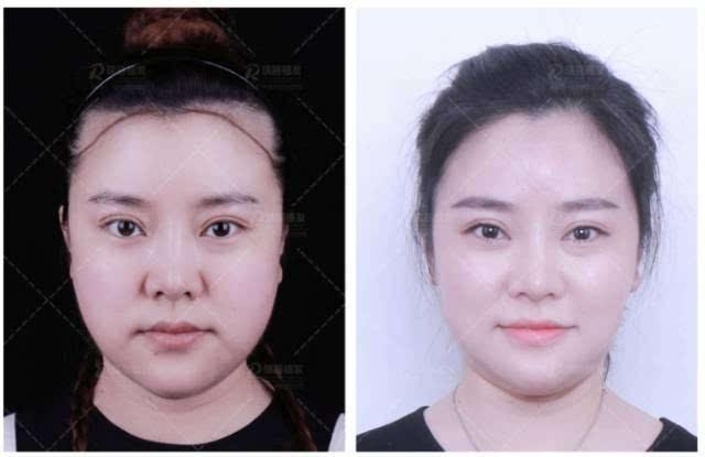 显脸大?大秃脑门?发际线对女人颜值影响有多大?一个视频看清楚!图片