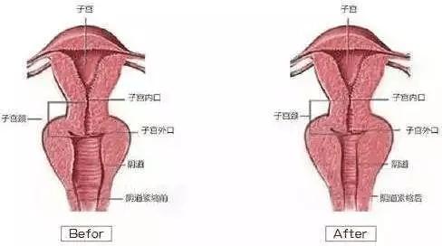 给女王舔阴道_不断改善,增强对内脏器官的支撑度,使外阴,阴道的肌体活性增强,有效
