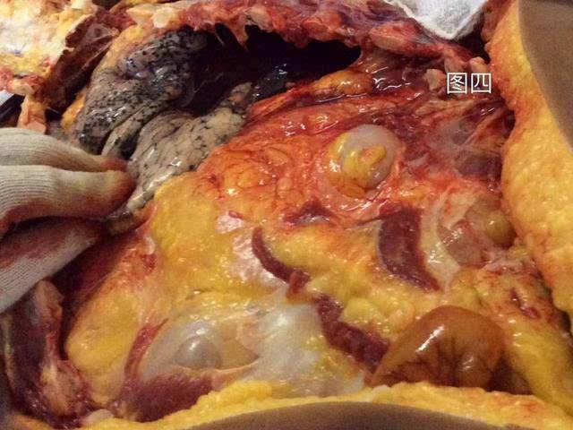 臀部解剖结构图高清