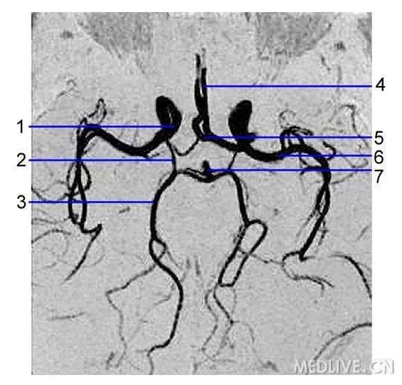 脑底动脉环,又称willis动脉环,由前交通动脉,两侧大脑前动脉,两侧颈
