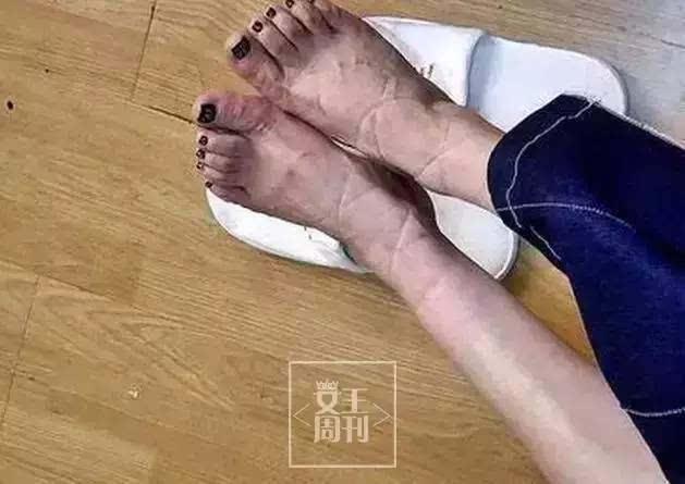 根据脚型选凉鞋,时髦不花冤枉钱!图片