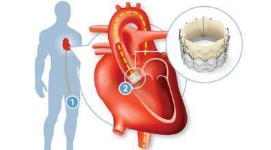 走进心脏瓣膜成形术以及瓣膜置换术,更清晰了解.