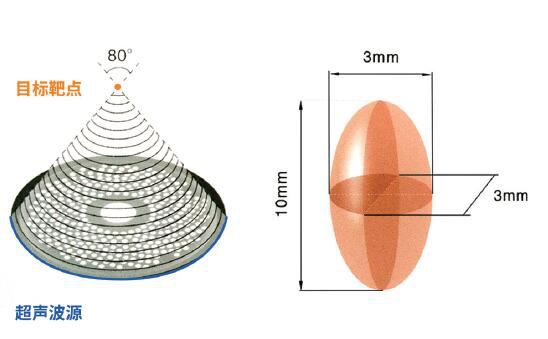 高强度聚焦超声治疗系统:海扶无创——治疗原理和案例
