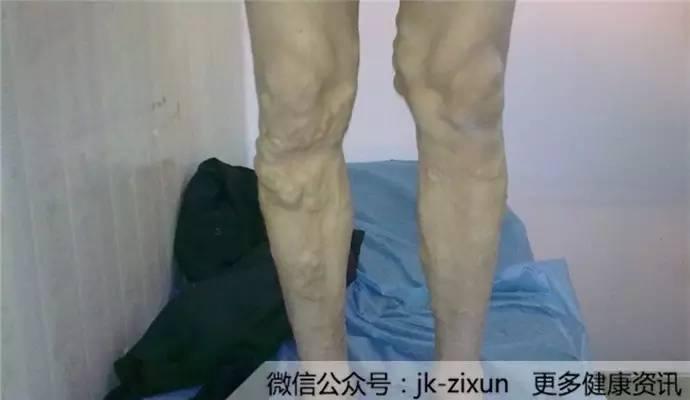 内侧感觉瘙痒别乱挠,小心越挠越直接!大腿严重问对女生我的图片