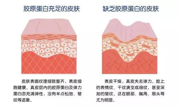 【组图】做激光祛斑皮肤真的会变薄吗?,有谁做