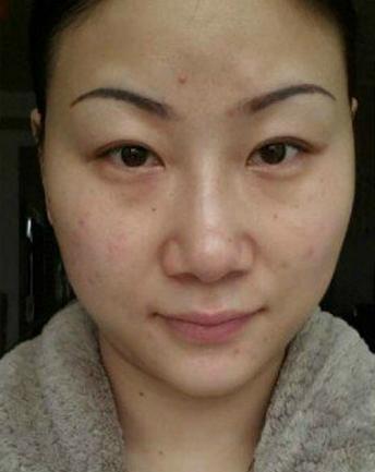 她辛苦想去掉脸上十多年斑点竟是因为这几个原因