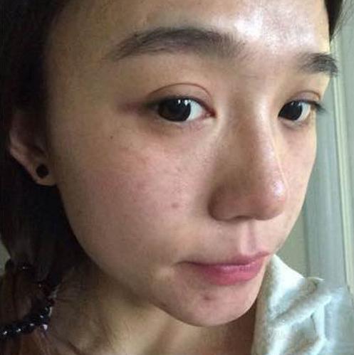 30岁女人斑点难以淡化竟然是这个原因