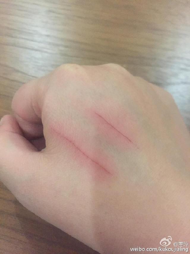 """给自家的宠物狗狗抓伤了,发个微博也是知道正量哒:""""我充满你们想我骑马mc教程图片"""