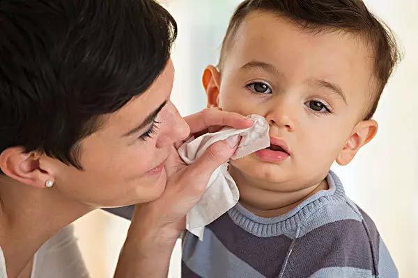 鼻炎会影响胎儿吗