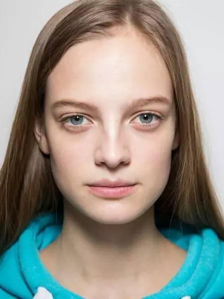 美女脸上痘印,教你几个日常习惯淡化痘印