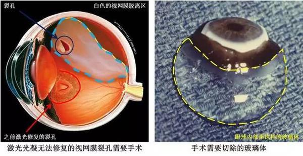 玻璃体是我们眼睛内体积最大的结构,它像果冻一样,起到支撑,减震的