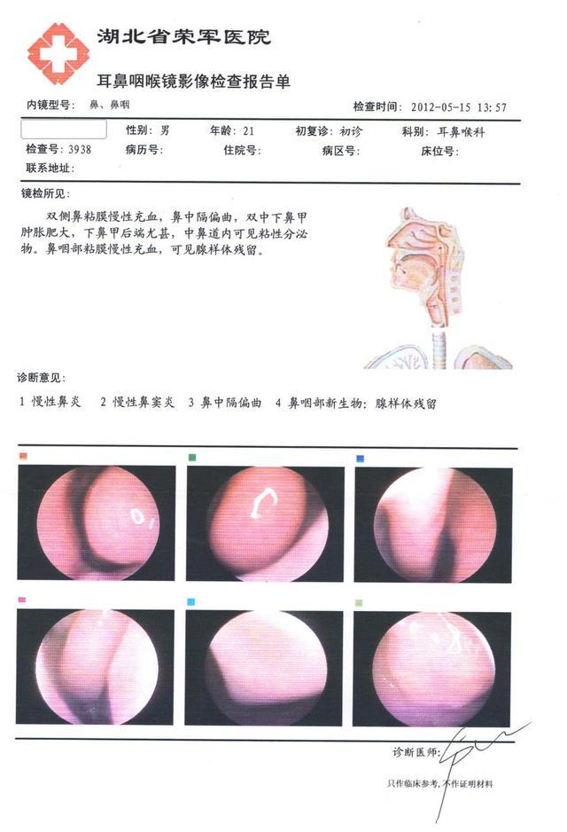 鼻窦炎怎么治_鼻窦炎的最好治疗方法