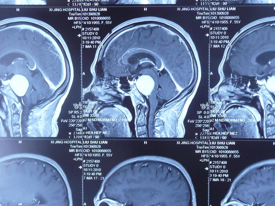 脑肿瘤术后注意事项