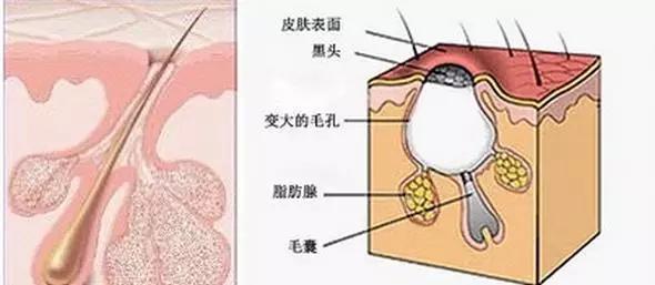 正常鼻子内部结构图