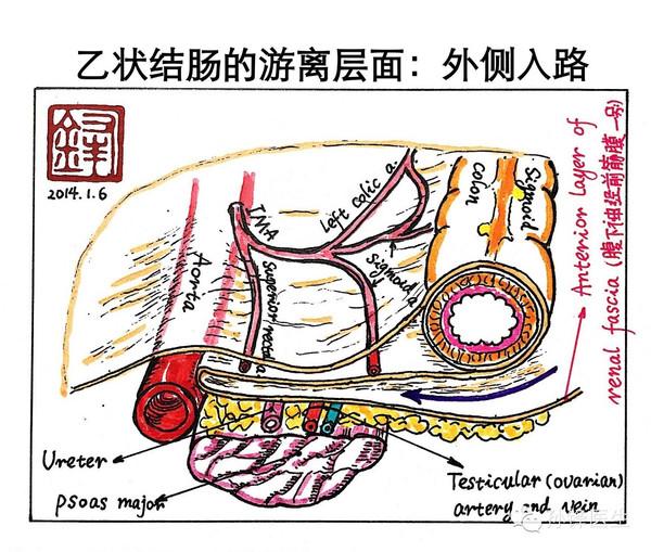图(1):乙状结肠的解剖层面   在CME的理念下,在腹腔镜下乙状结肠癌根治性切除术中,我们应该注意以下三个手术要点。   一、入路的选择   在腹腔镜下行乙状结肠根治性切除术中,应首选中央入路。操作之初,以骶骨岬作为起始点,由尾侧向头侧、以肠系膜下动脉(IMA)为解剖标志,沿着左侧Toldt间隙的右侧黄白交界线(即右侧Toldt线)进行分离。按照上述的入路操作方法,便于左侧Toldt间隙的辨认和正确手术层面的进入。   二、平面的维持   在左侧Toldt间隙的拓展过程中,我们始终应该以光滑的左侧