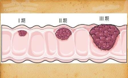 其实大肠瘜肉病理组织分类中,以增生性瘜肉和腺瘤性瘜肉两大类为主.