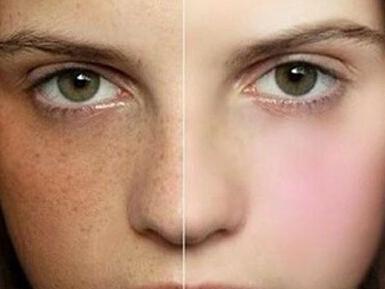 女人脸上长斑竟与这个有关.祛斑原来可以这么简单