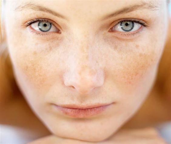 三大因素导致日晒斑的形成