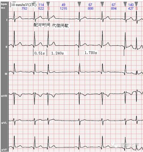 什么意思啊:没问题 担心. 窦性心动过缓是心脏偏慢, 心电图正常