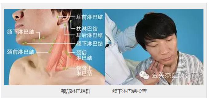 临床技能 演示 颌下淋巴结检查