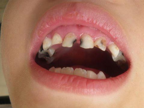 做梦牙齿被虫吃了个两个东西怎么回事