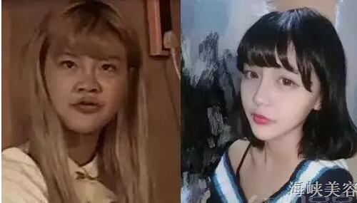 韩安冉,李蒽熙,刘梓晨,整容界的