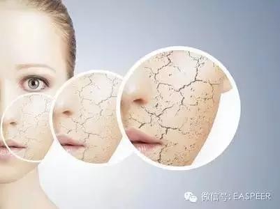 皮肤缺水示意图