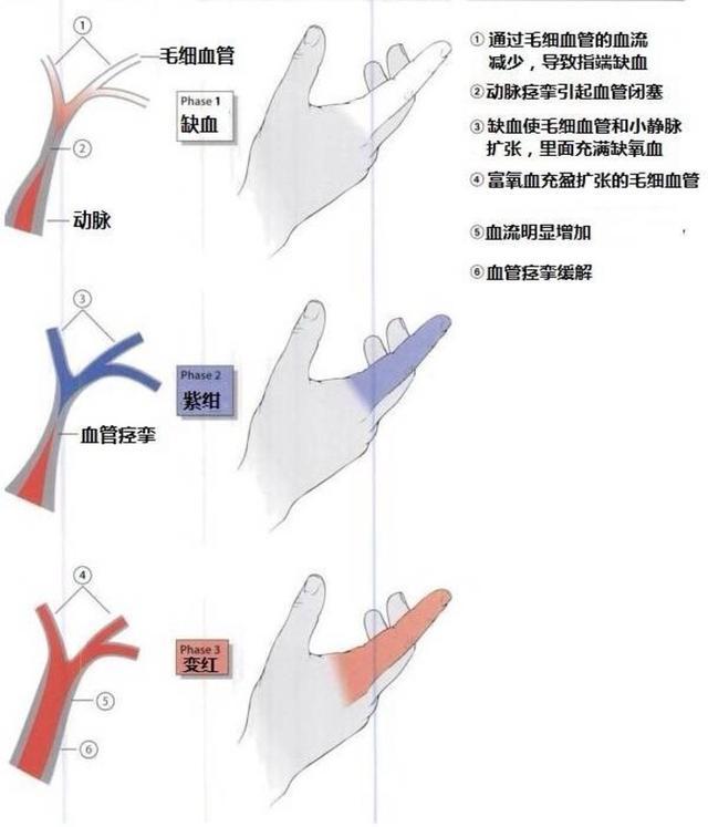 风湿免疫系统疾病