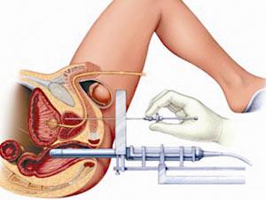 前列腺怎么治才算合理,前列腺怎么治