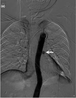 什么是瘺a��aX��i�_主动脉食管瘘:罕见致命的消化道出血